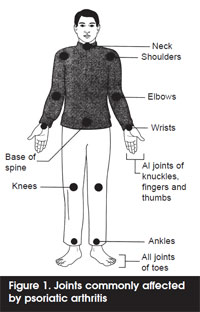 joints-affected-by-psoriatic-arthritis